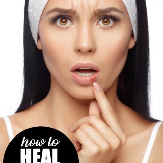 How to Heal Chapped Lips Naturally